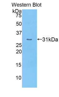 Western blot of recombinant CR1 / CD35.  This image was taken for the unconjugated form of this product. Other forms have not been tested.