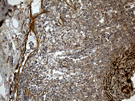 CR1 / CD35 Antibody - Immunohistochemical staining of paraffin-embedded Human tonsil within the normal limits using anti-CR1 mouse monoclonal antibody. (Heat-induced epitope retrieval by 1mM EDTA in 10mM Tris buffer. (pH8.5) at 120°C for 3 min. (1:500)