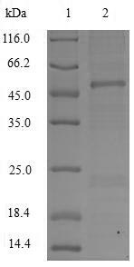 APOC3 / Apolipoprotein C III Protein - (Tris-Glycine gel) Discontinuous SDS-PAGE (reduced) with 5% enrichment gel and 15% separation gel.
