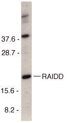 Western blot analysis of RAIDD in HeLa cell lysate with RAIDD antibody at 1µg/ml.