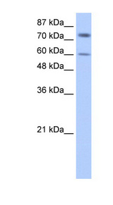 IGF2BP1 antibody LS-B1540 Western blot of HepG2 cell lysate.  This image was taken for the unconjugated form of this product. Other forms have not been tested.