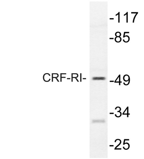 Western blot of CRF-RI (H177) pAb in extracts from HT-29 cells.