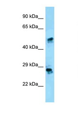 CRISP1 antibody Western blot of HepG2 Cell lysate. Antibody concentration 1 ug/ml.  This image was taken for the unconjugated form of this product. Other forms have not been tested.