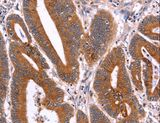 Immunohistochemistry of Human liver cancer using CRISP3 Polyclonal Antibody at dilution of 1:40.