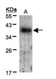 Sample(30 g of whole cell lysate). A: A431. 12% SDS PAGE. CRK antibody diluted at 1:1500.