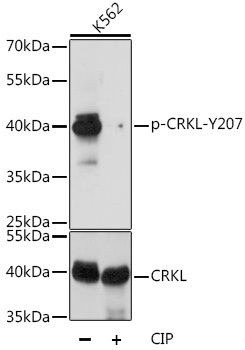 CRKL Antibody - Western blot analysis of extracts of K-562 cells, using Phospho-CRKL-Y207 antibody at 1:1000 dilution or CRKL antibody. K-562 cells were treated by CIP(20uL/400ul) at 37℃ for 1 hour. The secondary antibody used was an HRP Goat Anti-Rabbit IgG (H+L) at 1:10000 dilution. Lysates were loaded 25ug per lane and 3% nonfat dry milk in TBST was used for blocking. Blocking buffer: 3% BSA.An ECL Kit was used for detection and the exposure time was 5s.