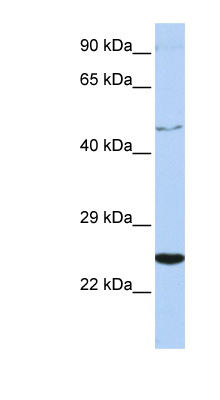 CRLF1 antibody LS-C110190 Western blot of Jurkat lysate.  This image was taken for the unconjugated form of this product. Other forms have not been tested.