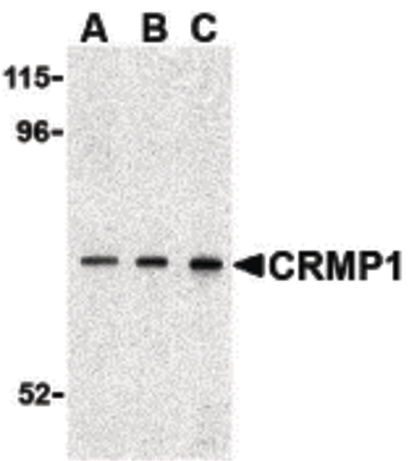 Western blot of CRMP1 in 3T3 cell lysate with CRMP1 antibody at (A) 0.5, (B) 1 and (C) 2 ug/ml.