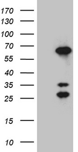 CRNN / Cornulin Antibody - HEK293T cells were transfected with the pCMV6-ENTRY control. (Left lane) or pCMV6-ENTRY CRNN. (Right lane) cDNA for 48 hrs and lysed. Equivalent amounts of cell lysates. (5 ug per lane) were separated by SDS-PAGE and immunoblotted with anti-CRNN. (1:2000)