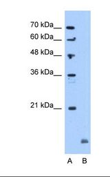 CRYAB / Alpha B Crystallin Antibody - Lane A: Marker. Lane B: Jurkat cell lysate. Antibody concentration: 5.0 ug/ml. Gel concentration: 12%.  This image was taken for the unconjugated form of this product. Other forms have not been tested.