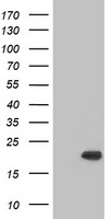 CRYAB / Alpha B Crystallin Antibody - HEK293T cells were transfected with the pCMV6-ENTRY control (Left lane) or pCMV6-ENTRY CRYAB (Right lane) cDNA for 48 hrs and lysed. Equivalent amounts of cell lysates (5 ug per lane) were separated by SDS-PAGE and immunoblotted with anti-CRYAB.