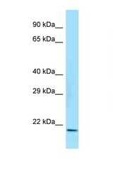 CRYAB / Alpha B Crystallin antibody Western blot of Rat Brain lysate. Antibody concentration 1 ug/ml.  This image was taken for the unconjugated form of this product. Other forms have not been tested.