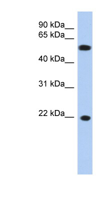 CRYGC antibody Western blot of OVCAR-3 cell lysate. This image was taken for the unconjugated form of this product. Other forms have not been tested.