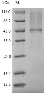 OPRT Protein - (Tris-Glycine gel) Discontinuous SDS-PAGE (reduced) with 5% enrichment gel and 15% separation gel.