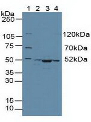Western Blot; Sample: Lane1: Human 293T Cells; Lane2: Human Hela Cells; Lane3: Mouse Skeletal Muscle Tissue; Lane4: Human HepG2 Cells.