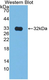 Western blot of recombinant CS / Citrate Synthase.
