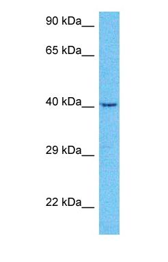 Western blot of ERCC8 Antibody with human Jurkat Whole Cell lysate.  This image was taken for the unconjugated form of this product. Other forms have not been tested.