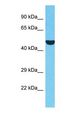 Western blot of ERCC8 Antibody with human HepG2 Whole Cell lysate.  This image was taken for the unconjugated form of this product. Other forms have not been tested.