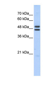 ERCC8 antibody LS-C102802 Western blot of HepG2 cell lysate.  This image was taken for the unconjugated form of this product. Other forms have not been tested.