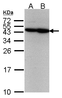 Sample(30 g of whole cell lysate). A:293T. B: A431. 12% SDS PAGE. ERCC8 antibody diluted at 1:500.
