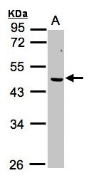 Sample (30g whole cell lysate). A: MOLT4. 10% SDS PAGE. ERCC8 antibody diluted at 1:1000.