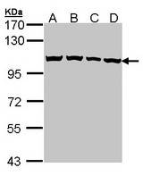 Sample (30 ug of whole cell lysate). A:293T, B: A431 , C: H1299, D: Hela. 7.5% SDS PAGE. CSE1L antibody diluted at 1:1000.