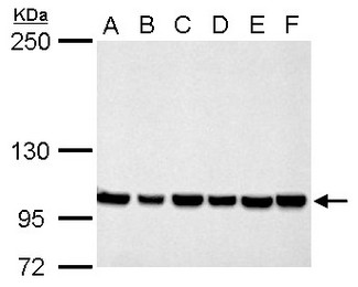 CSE1L antibody detects CSE1L protein by Western blot analysis. A. 30 ug Neuro2A whole cell lysate/extract. B. 30 ug GL261 whole cell lysate/extract. C. 30 ug C8D30 whole cell lysate/extract. D. 30 ug NIH-3T3 whole cell lysate/extract. E. 30 ug BCL-1 whole cell lysate/extract. F. 30 ug Raw264.7 whole cell lysate/extract. G. 30 ug C2C12 whole cell lysate/extract. 5 % SDS-PAGE. CSE1L antibody dilution:1:1000