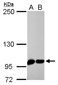 CSE1L antibody detects CSE1L protein by Western blot analysis. A. 30 ug PC-12 whole cell lysate/extract. B. 30 ug Rat2 whole cell lysate/extract. 5 % SDS-PAGE. CSE1L antibody dilution:1:1000