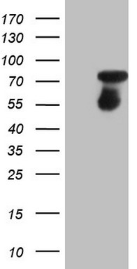 HEK293T cells were transfected with the pCMV6-ENTRY control (Left lane) or pCMV6-ENTRY CSF1 (Right lane) cDNA for 48 hrs and lysed. Equivalent amounts of cell lysates (5 ug per lane) were separated by SDS-PAGE and immunoblotted with anti-CSF1.