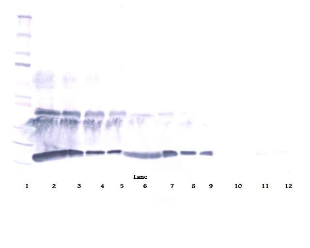 Western Blot (reducing) of CSF1 / M-CSF antibody. This image was taken for the unconjugated form of this product. Other forms have not been tested.