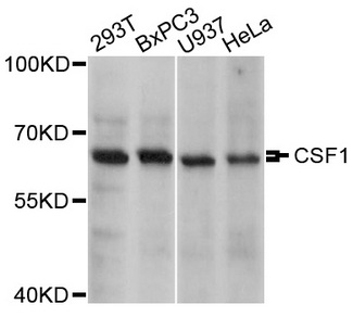Western blot analysis of extracts of various cell lines, using CSF1 antibody at 1:1000 dilution. The secondary antibody used was an HRP Goat Anti-Rabbit IgG (H+L) at 1:10000 dilution. Lysates were loaded 25ug per lane and 3% nonfat dry milk in TBST was used for blocking. An ECL Kit was used for detection and the exposure time was 5s.