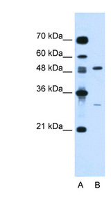 CSF1 / MCSF Antibody - CSF1 / MCSF antibody ARP44329_P050-NP_757349-CSF1(colony stimulating factor 1 (macrophage)) Antibody Western blot of Jurkat lysate.  This image was taken for the unconjugated form of this product. Other forms have not been tested.