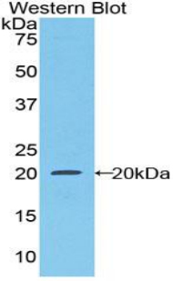 CSF1R / CD115 / FMS Antibody - Western blot of recombinant CSF1R / CD115 / FMS.  This image was taken for the unconjugated form of this product. Other forms have not been tested.