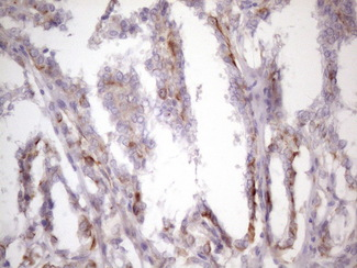 CSF2 / GM-CSF Antibody - IHC of paraffin-embedded Carcinoma of Human thyroid tissue using anti-CSF2 mouse monoclonal antibody. (Heat-induced epitope retrieval by 1 mM EDTA in 10mM Tris, pH8.5, 120°C for 3min)(1:150).