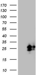 CSF2 / GM-CSF Antibody - HEK293T cells were transfected with the pCMV6-ENTRY control. (Left lane) or pCMV6-ENTRY CSF2. (Right lane) cDNA for 48 hrs and lysed