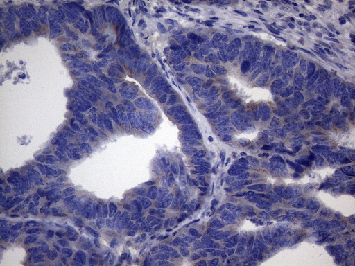 CSF2 / GM-CSF Antibody - Immunohistochemical staining of paraffin-embedded Adenocarcinoma of Human colon tissue using anti-CSF2 mouse monoclonal antibody. (Heat-induced epitope retrieval by 1mM EDTA in 10mM Tris buffer. (pH8.5) at 120°C for 3 min. (1:150)