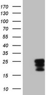 CSF2 / GM-CSF Antibody - HEK293T cells were transfected with the pCMV6-ENTRY control (Left lane) or pCMV6-ENTRY CSF2 (Right lane) cDNA for 48 hrs and lysed. Equivalent amounts of cell lysates (5 ug per lane) were separated by SDS-PAGE and immunoblotted with anti-CSF2 (1:2000).