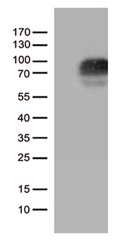 CSF2RA / CD116 Antibody - HEK293T cells were transfected with the pCMV6-ENTRY control. (Left lane) or pCMV6-ENTRY CSF2RA. (Right lane) cDNA for 48 hrs and lysed. Equivalent amounts of cell lysates. (5 ug per lane) were separated by SDS-PAGE and immunoblotted with anti-CSF2RA. (1:500)