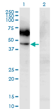 Western Blot analysis of CSF2RA expression in transfected 293T cell line by CSF2RA monoclonal antibody (M03), clone 2G5.Lane 1: CSF2RA transfected lysate(46.2 KDa).Lane 2: Non-transfected lysate.