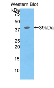 CSF2RB / CD131 Antibody - Western blot of recombinant CSF2RB / CD131.  This image was taken for the unconjugated form of this product. Other forms have not been tested.