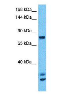 CSF3R / CD114 Antibody - Western blot of CSF3R Antibody with human 293T Whole Cell lysate.  This image was taken for the unconjugated form of this product. Other forms have not been tested.