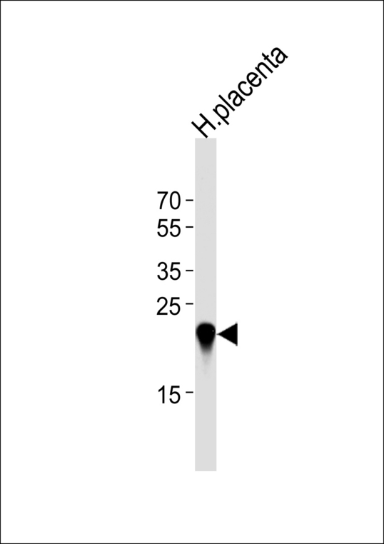 CSHL1 / CSH-Like 1 Antibody - Western blot of lysate from human placenta tissue lysate, using CSHL1 Antibody. Antibody was diluted at 1:1000 at each lane. A goat anti-rabbit IgG H&L (HRP) at 1:5000 dilution was used as the secondary antibody. Lysate at 35ug per lane.