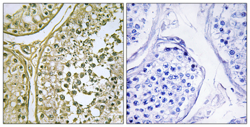 CSNK1A1 + CSNK1A1L Antibody - Immunohistochemistry analysis of paraffin-embedded human testis tissue, using CKI-alpha1/L Antibody. The picture on the right is blocked with the synthesized peptide.