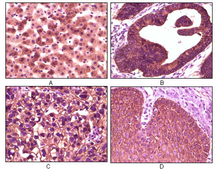 CSNK1E / CK1 Epsilon Antibody - IHC of paraffin-embedded human liver tissue (A), colon carcinoma (B), lung carcinoma (C) and esophagus tissue (D), showing membrane localization using CK1 mouse monoclonal antibody with DAB staining.