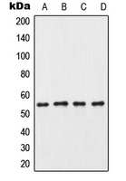 CSNK1G3 / CKI-Gamma 3 Antibody - Western blot analysis of CK1 gamma 3 expression in HeLa (A); mouse testis (B); rat testis (C); PC12 (D) whole cell lysates.