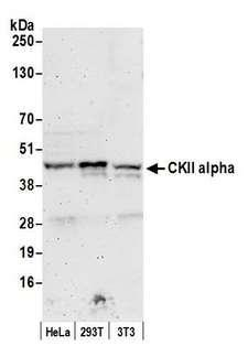 CSNK2A1 Antibody - Detection of human and mouse CKII alpha by western blot. Samples: Whole cell lysate (50 µg) from HeLa, HEK293T, and mouse NIH 3T3 cells prepared using NETN lysis buffer. Antibody: Affinity purified rabbit anti-CKII alpha antibody used for WB at 0.1 µg/ml. Detection: Chemiluminescence with an exposure time of 3 minutes.