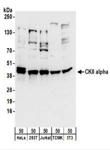 Detection of Human and Mouse CKII alpha by Western Blot. Samples: Whole cell lysate (50 ug) from HeLa, 293T, Jurkat, mouse TCMK-1, and mouse NIH3T3 cells. Antibodies: Affinity purified rabbit anti-CKII alpha antibody used for WB at 0.1 ug/ml. Detection: Chemiluminescence with an exposure time of 10 seconds.