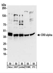 CSNK2A1 Antibody - Detection of Human and Mouse CKII alpha by Western Blot. Samples: Whole cell lysate (50 ug) from HeLa, 293T, Jurkat, mouse TCMK-1, and mouse NIH3T3 cells. Antibodies: Affinity purified rabbit anti-CKII alpha antibody used for WB at 0.1 ug/ml. Detection: Chemiluminescence with an exposure time of 10 seconds.