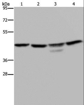 CSNK2A1 Antibody - Western blot analysis of K562 and 293T cell, Jurkat cell and mouse brain tissue, using CSNK2A1 Polyclonal Antibody at dilution of 1:300.