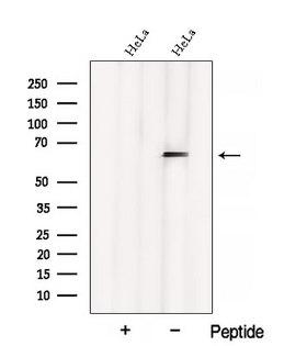 CSRNP1 / AXUD1 Antibody - Western blot analysis of extracts of HeLa cells using AXUD1 antibody. The lane on the left was treated with blocking peptide.